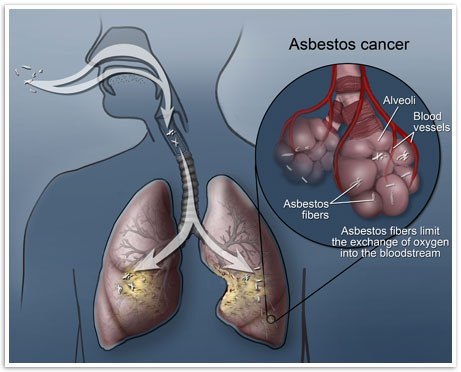How asbestos causes cancer